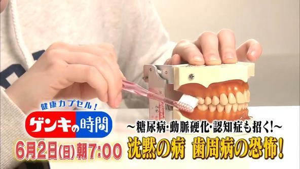 6月2日(日)あさ7:00放送「健康カプセル!ゲンキの時間」、今回のテーマは「~糖尿病・動脈硬化・認知症も招く!~沈黙の病、歯周病の恐怖!」 (1)